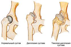 Виды дисплазии тазобедренных суставов