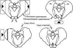 Локализация наиболее характерных переломов таза