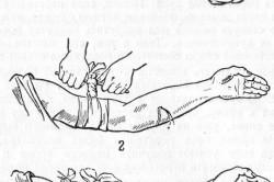 Наложение жгута при кровотечении