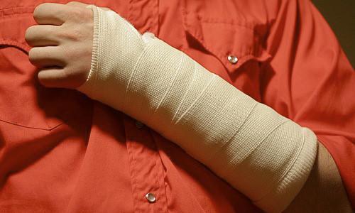 Проблема перелома руки у ребенка