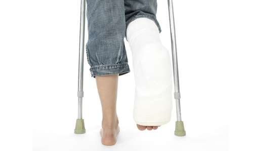Проблема перелома стопы