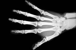 Рентген кисти при растяжении связок