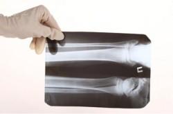 Рентген при чрезмыщелковом переломе плечевой кости