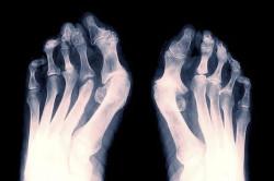 Рентген стопы для диагностики перелома