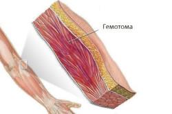 Схема подкожной гематомы