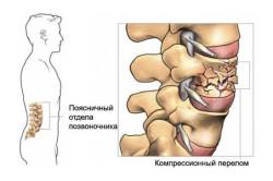 Схема компрессионного перелома