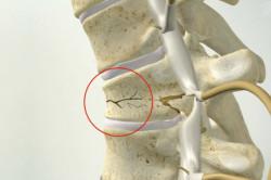 Трещина при компрессионном переломе