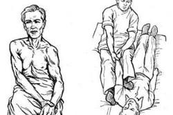 Вправление плеча по методу Гиппократа-Купера