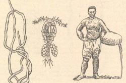 Слоновая болезнь - осложнение лимфостаза