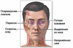 Симптомы черепно-мозговых травм