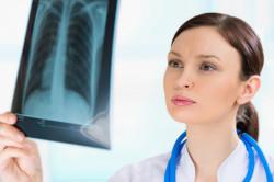 Осмотр врачом результатов рентгеновского снимка