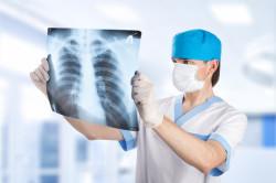 Рентген состояния ребер