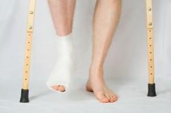 Гипс для лечения перелома пяточной кости
