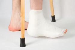 Гипсовая лангета для лечения вывиха стопы