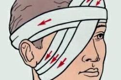 Накладывание повязки на глаза при ушибе