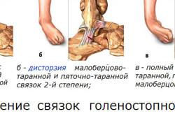 Повреждения связок голеностопного сустава
