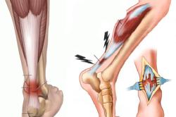Схема разрыва связок голеностопного сустава
