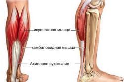 Расположение икроножной мышцы