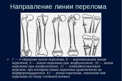Варианты линий перелома костей