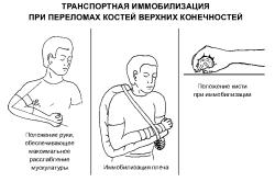 Иммобилизация при переломе руки