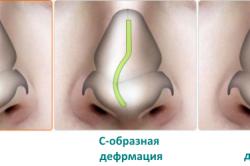 Формы деформации перегородки носа