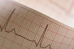 Электрокардиограмма при ушибе сердца
