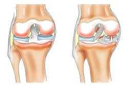 Схема растяжения связок коленного сустава