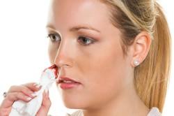 Кровотечение при переломе носа