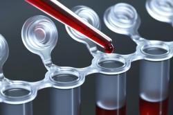 Анализ крови при растяжении связок