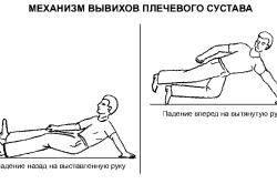 Механизм вывиха плечевого сустава