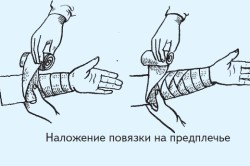 Наложение повязки на предплечье