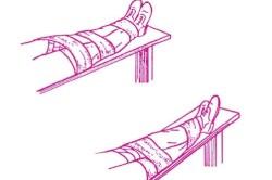 Создание неподвижности сломанной конечности по методу «нога к ноге»