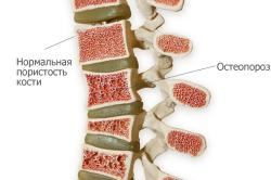 Остеопороз - причина компрессионного перелома позвоночника