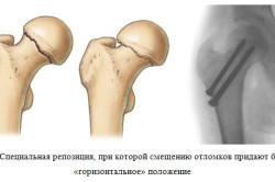 Репозиция при переломе бедра