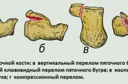 Виды перелома пяточной кости