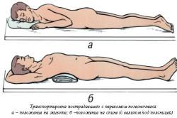 Транспортировка пострадавшего с переломом позвоночника