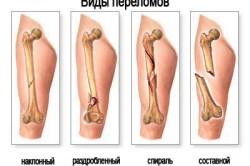 Виды переломов голени