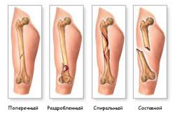 Типы переломов закрытого типа