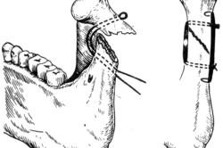 Схема наложения комбинации спицы на наружной поверхности мыщелкового отростка