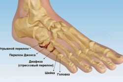 Переломы пятой плюсневой  кости стопы