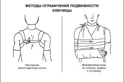 при переломах плеча
