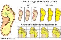 Плоскостопие - следствие перелома пяточной кости