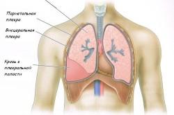 Скопление крови - гемоторакс
