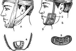 Методы иммобилизации фрагментов поврежденной нижней челюсти