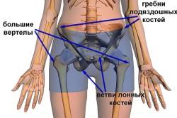Травмоопасные места тазобедренного сустава
