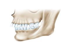 Неправильный прикус - признак повреждения челюсти