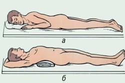 Транспортная иммобилизация при переломе позвоночника: а — положение на животу, б — положение на спине