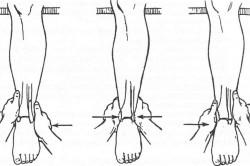 Репозиция при переломе лодыжки