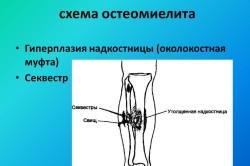 Схема остеомиелита