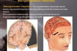 Определение эпидуральной гематомы